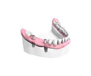 Remplacer plusieurs dents absentes ou abîmées à Pontault-Combault