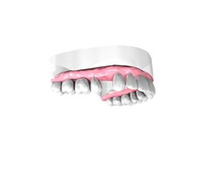Implant Dentaire Seine et Marne