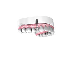 Remplacer une dent absente ou abîmée à Pontault-Combault